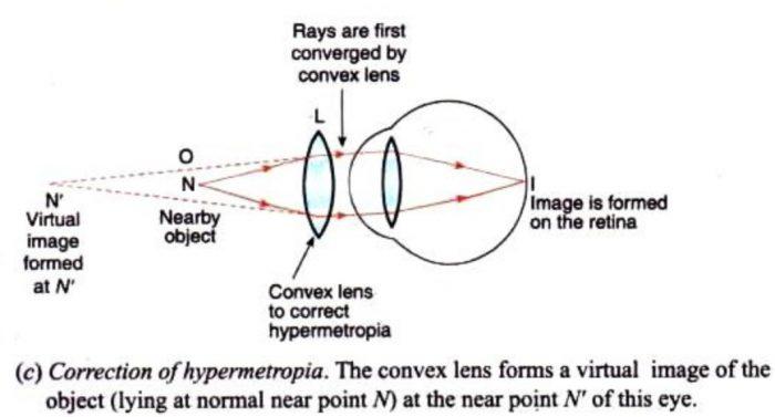 Correction of hypermetropia