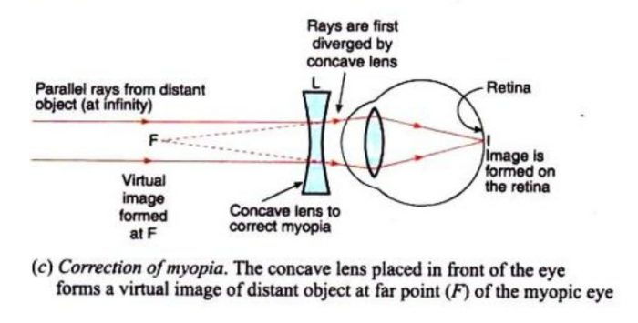 correction of myopia